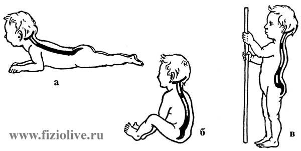 Появление изгибов позвоночника у детей